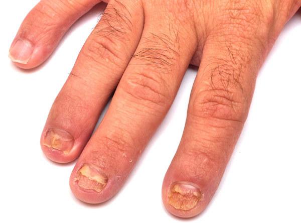 Nail fungs treatment