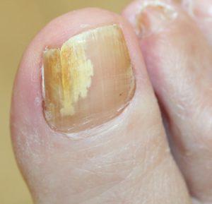 Toe nail fungus infection